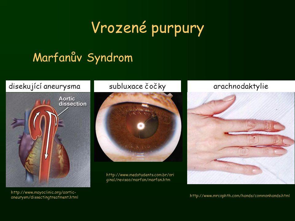 Vrozené purpury Marfanův Syndrom disekující aneurysma subluxace čočky