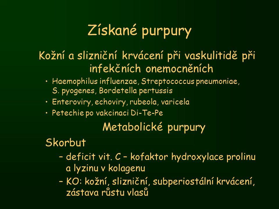 Kožní a slizniční krvácení při vaskulitidě při infekčních onemocněních