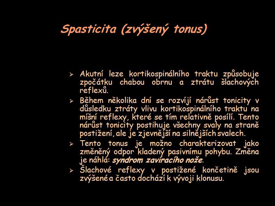 Spasticita (zvýšený tonus)