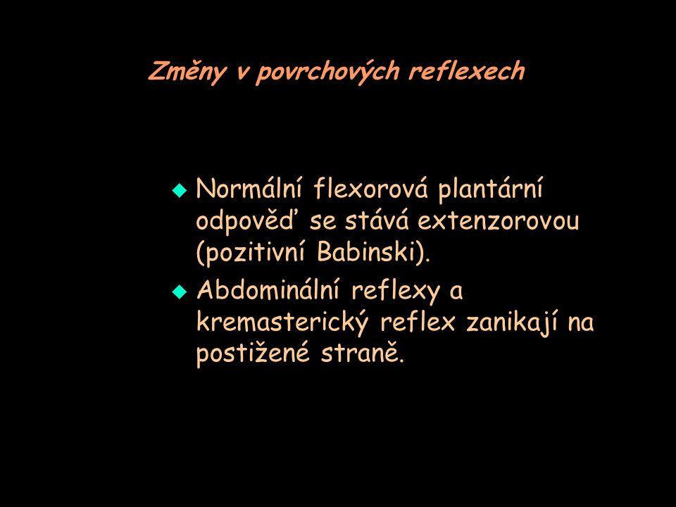 Změny v povrchových reflexech