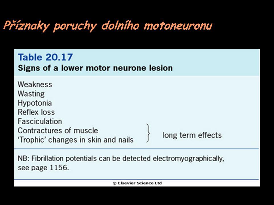 Příznaky poruchy dolního motoneuronu