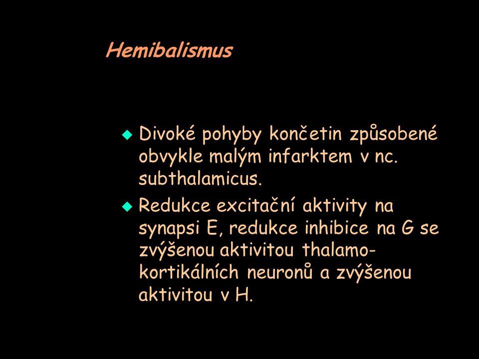 Hemibalismus Divoké pohyby končetin způsobené obvykle malým infarktem v nc. subthalamicus.