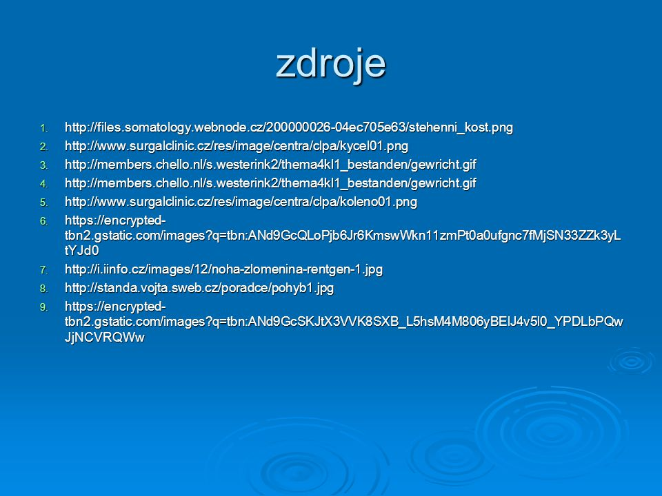 zdroje http://files.somatology.webnode.cz/200000026-04ec705e63/stehenni_kost.png. http://www.surgalclinic.cz/res/image/centra/clpa/kycel01.png.