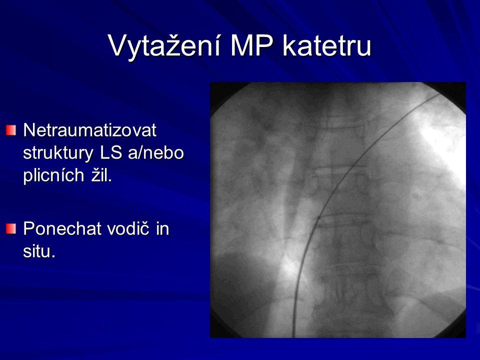 Vytažení MP katetru Netraumatizovat struktury LS a/nebo plicních žil.