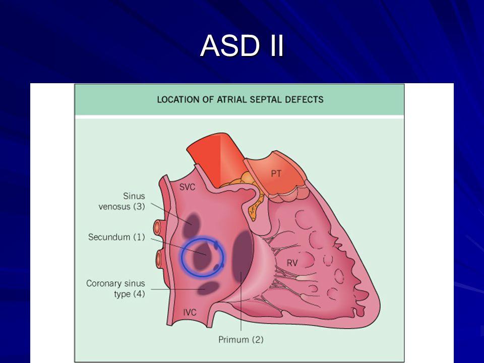 ASD II
