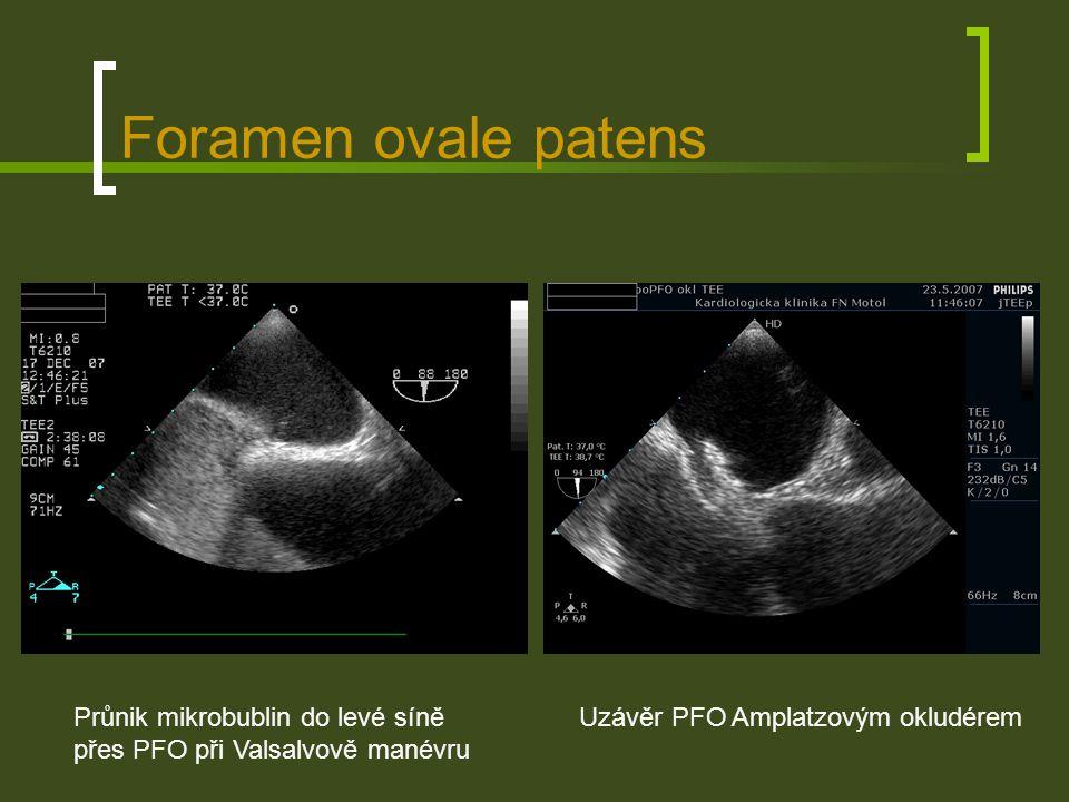 Foramen ovale patens Průnik mikrobublin do levé síně přes PFO při Valsalvově manévru.