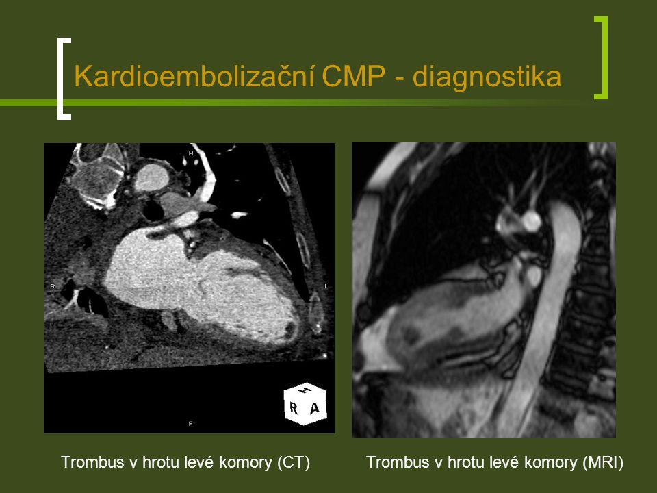 Kardioembolizační CMP - diagnostika