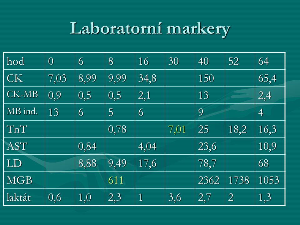 Laboratorní markery hod 6 8 16 30 40 52 64 CK 7,03 8,99 9,99 34,8 150