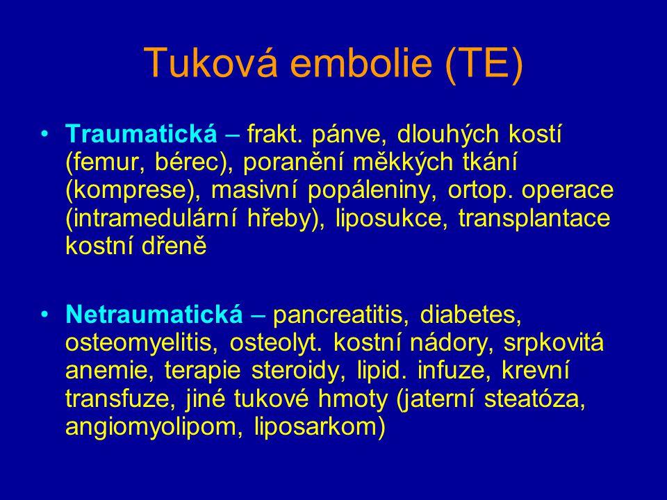 Tuková embolie (TE)