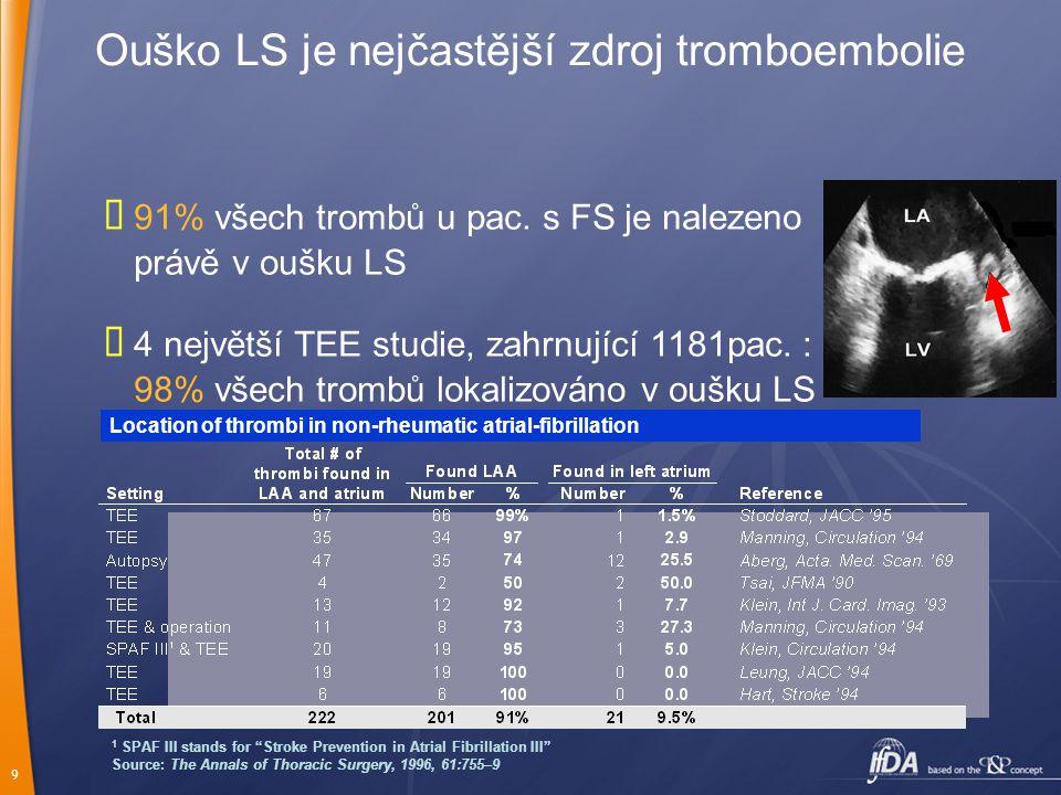 Ouško LS je nejčastější zdroj tromboembolie