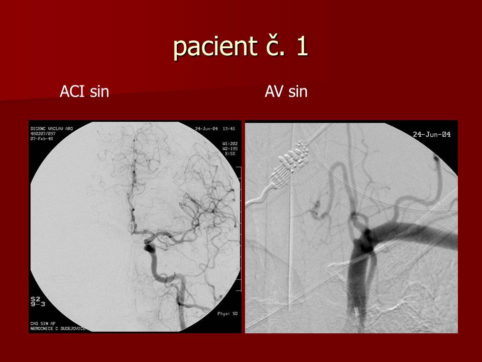pacient č. 1 ACI sin AV sin