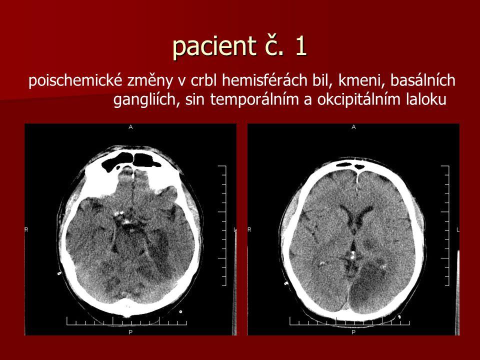 pacient č. 1 poischemické změny v crbl hemisférách bil, kmeni, basálních.