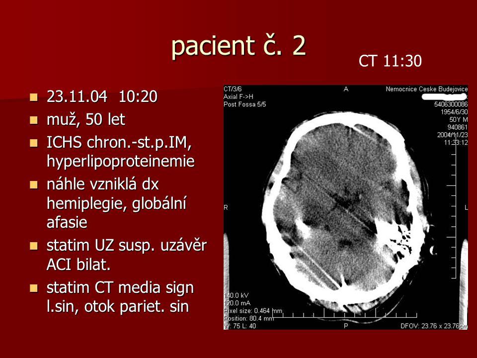 pacient č. 2 CT 11:30. 23.11.04 10:20. muž, 50 let. ICHS chron.-st.p.IM, hyperlipoproteinemie. náhle vzniklá dx hemiplegie, globální afasie.