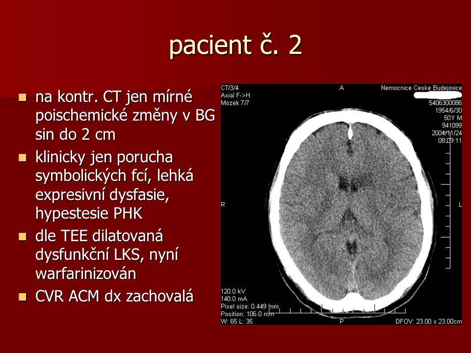 pacient č. 2 na kontr. CT jen mírné poischemické změny v BG sin do 2 cm.