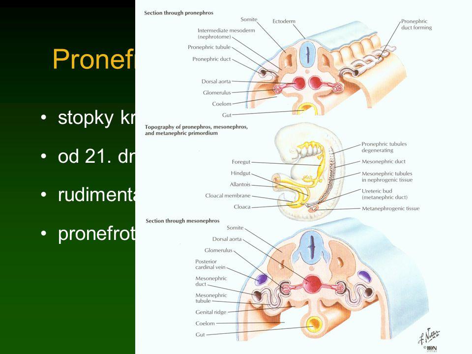 Pronefros stopky kraniálních 12-13 prvosegmentů