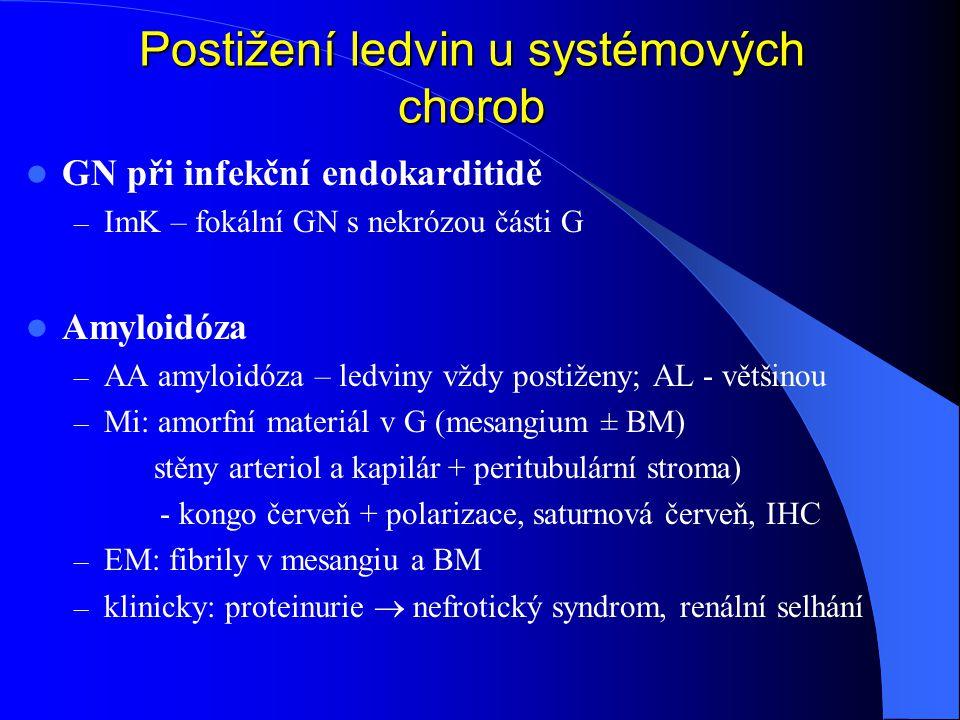 Postižení ledvin u systémových chorob