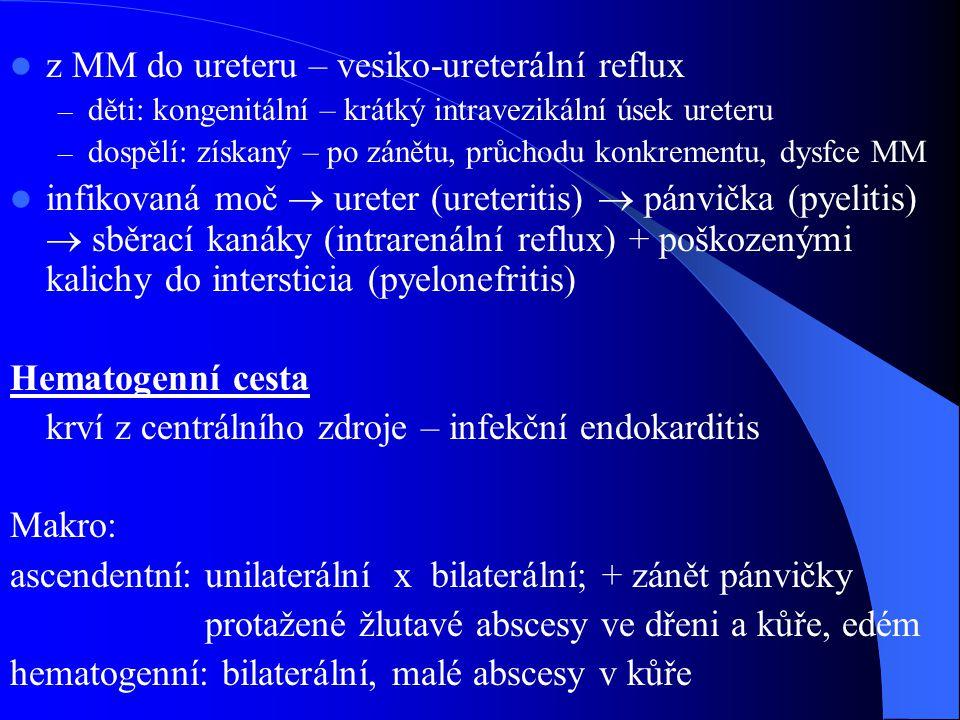 z MM do ureteru – vesiko-ureterální reflux