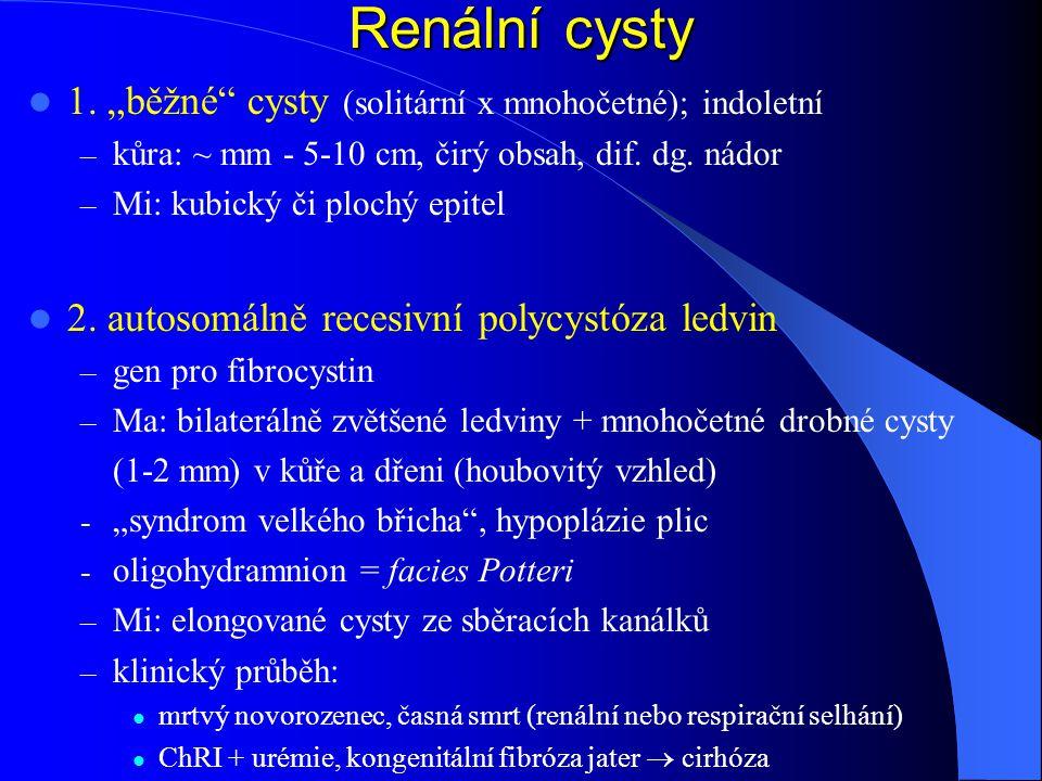 """Renální cysty 1. """"běžné cysty (solitární x mnohočetné); indoletní"""