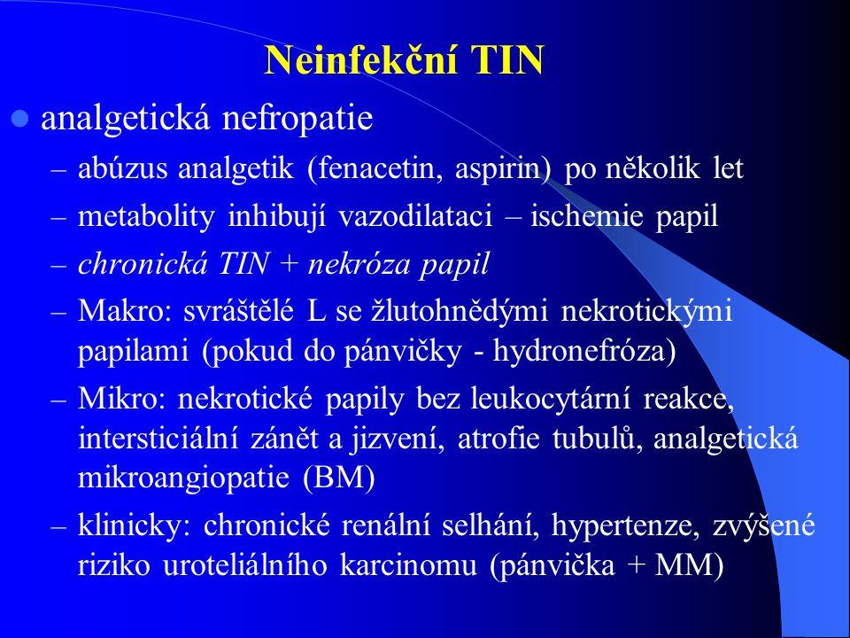 analgetická nefropatie