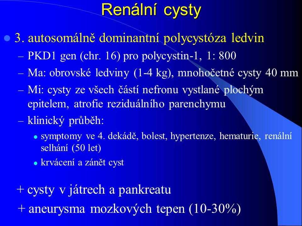 Renální cysty 3. autosomálně dominantní polycystóza ledvin
