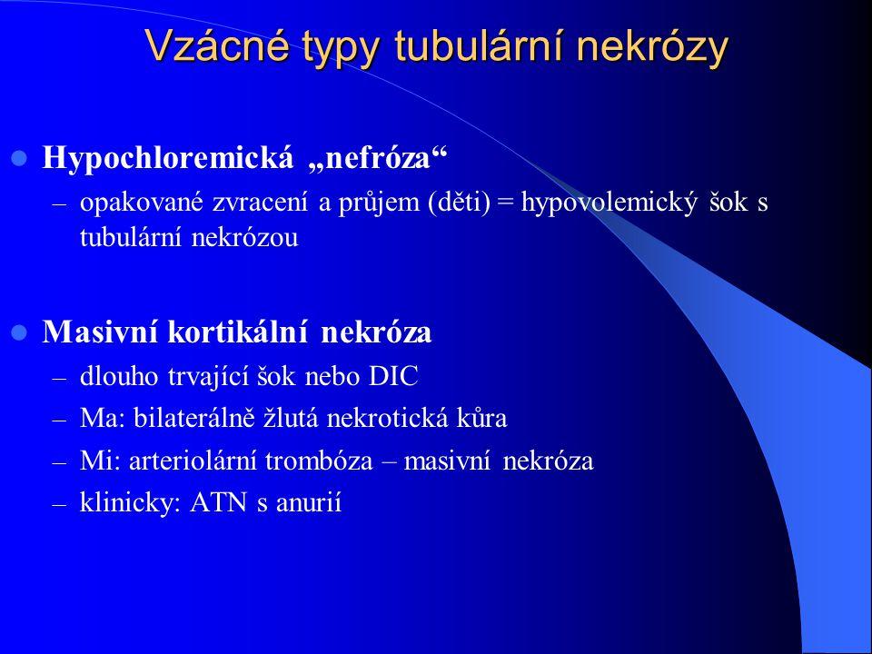 Vzácné typy tubulární nekrózy