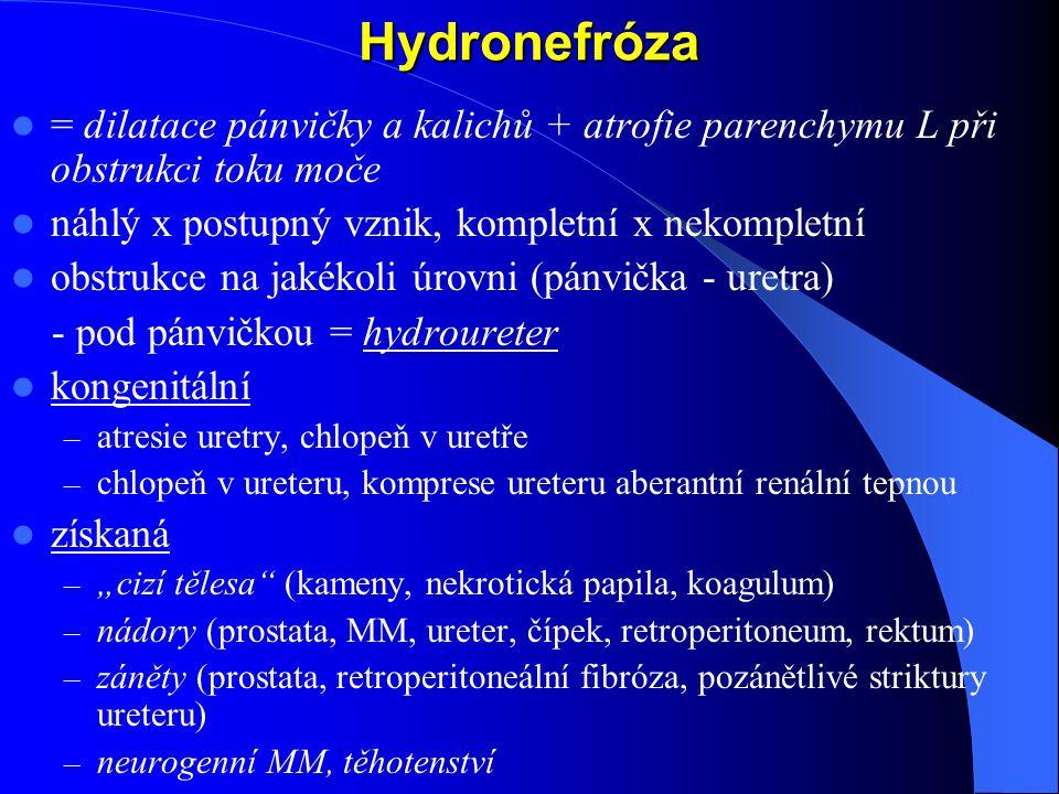 Hydronefróza = dilatace pánvičky a kalichů + atrofie parenchymu L při obstrukci toku moče. náhlý x postupný vznik, kompletní x nekompletní.