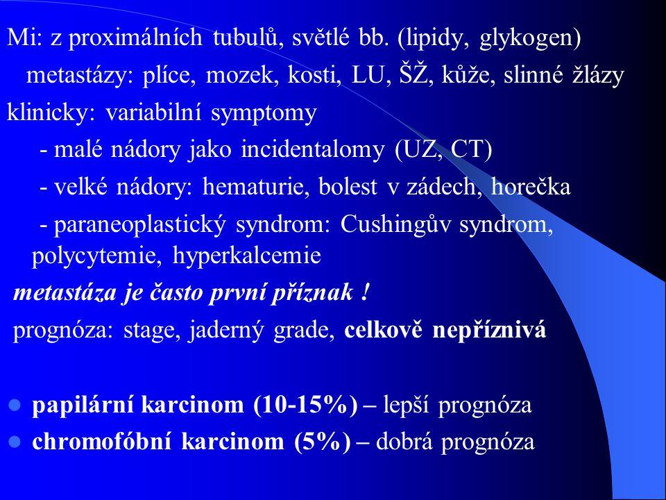 Mi: z proximálních tubulů, světlé bb. (lipidy, glykogen)