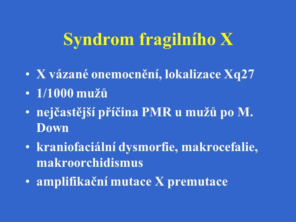 Syndrom fragilního X X vázané onemocnění, lokalizace Xq27 1/1000 mužů