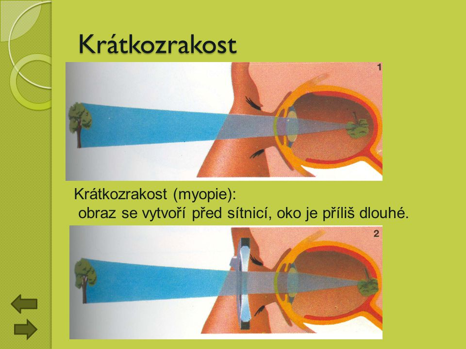 Krátkozrakost Krátkozrakost (myopie):