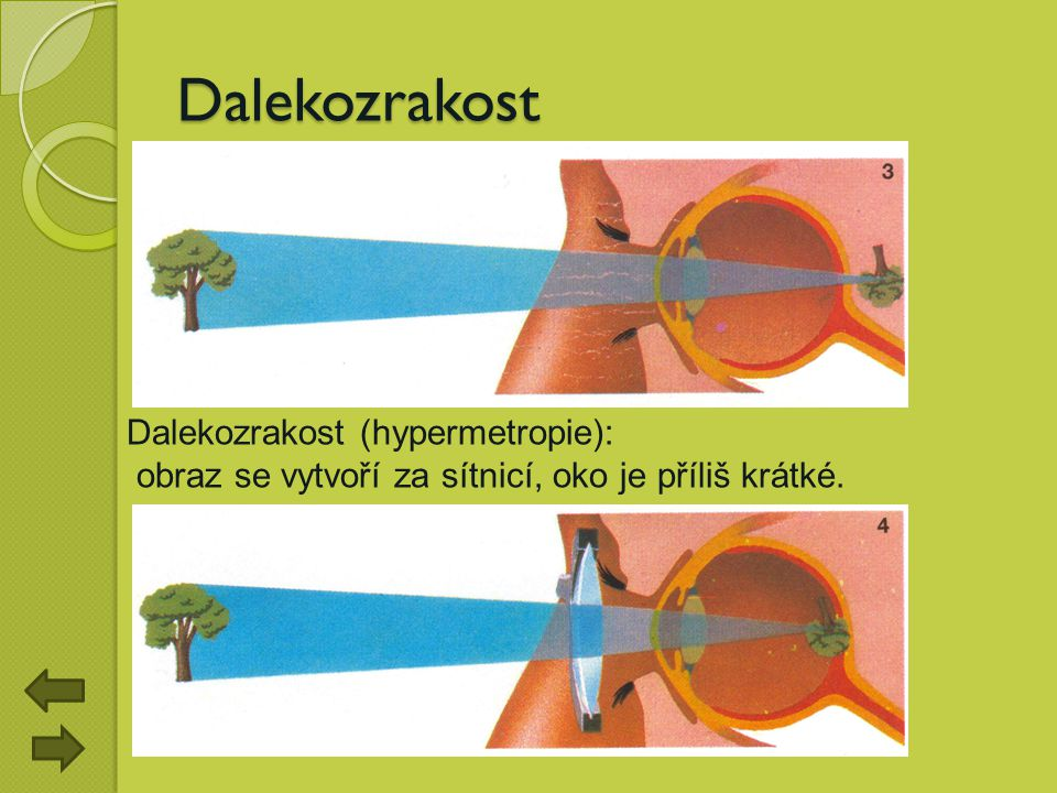Dalekozrakost Dalekozrakost (hypermetropie):