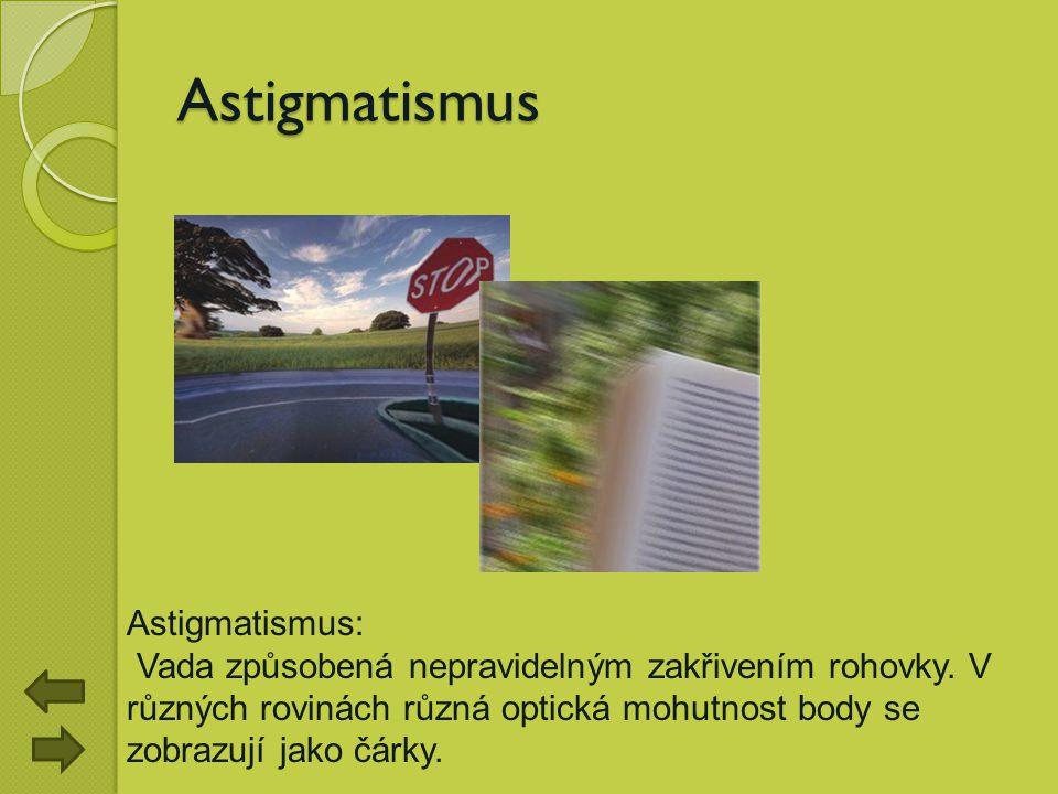 Astigmatismus Astigmatismus: