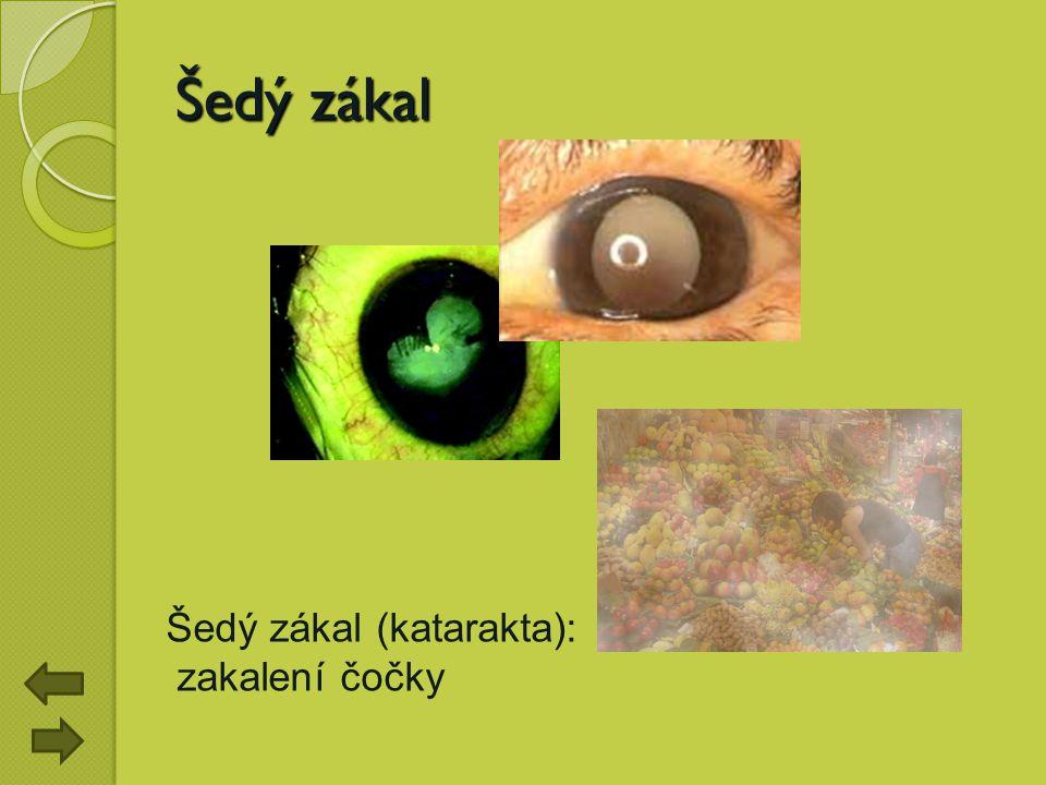 Šedý zákal Šedý zákal (katarakta): zakalení čočky
