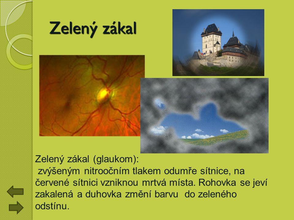 Zelený zákal Zelený zákal (glaukom):