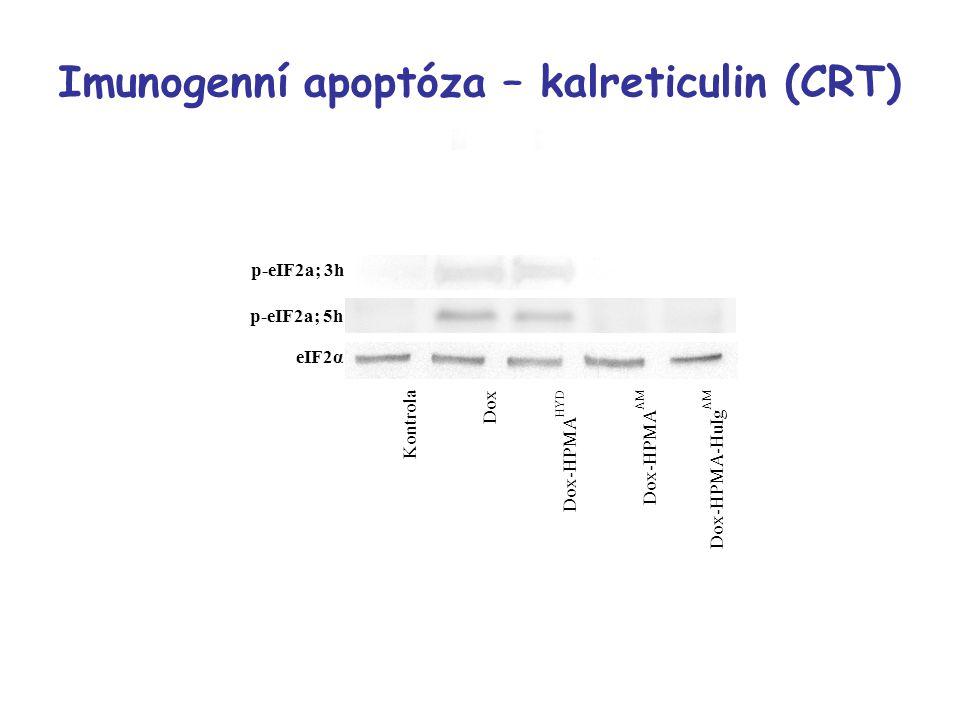 Imunogenní apoptóza – kalreticulin (CRT)