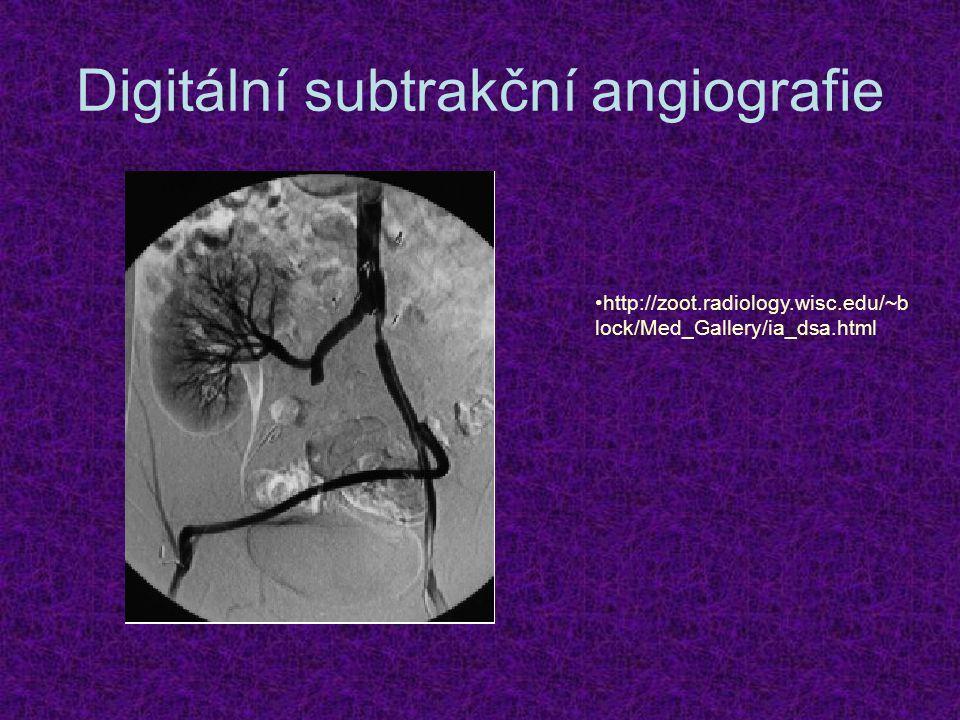 Digitální subtrakční angiografie