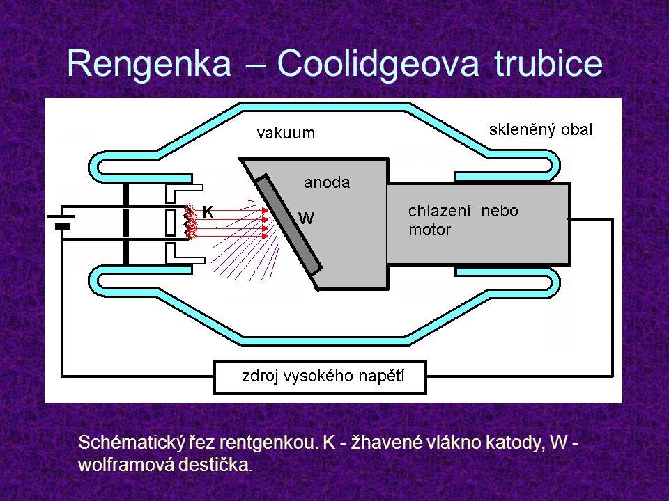 Rengenka – Coolidgeova trubice