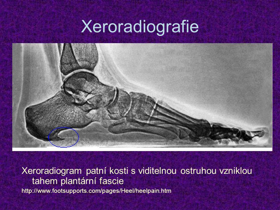 Xeroradiografie Xeroradiogram patní kosti s viditelnou ostruhou vzniklou tahem plantární fascie.
