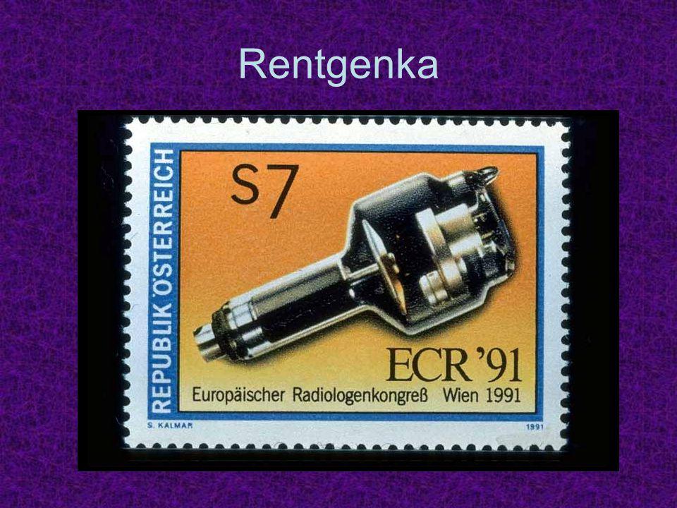 Rentgenka