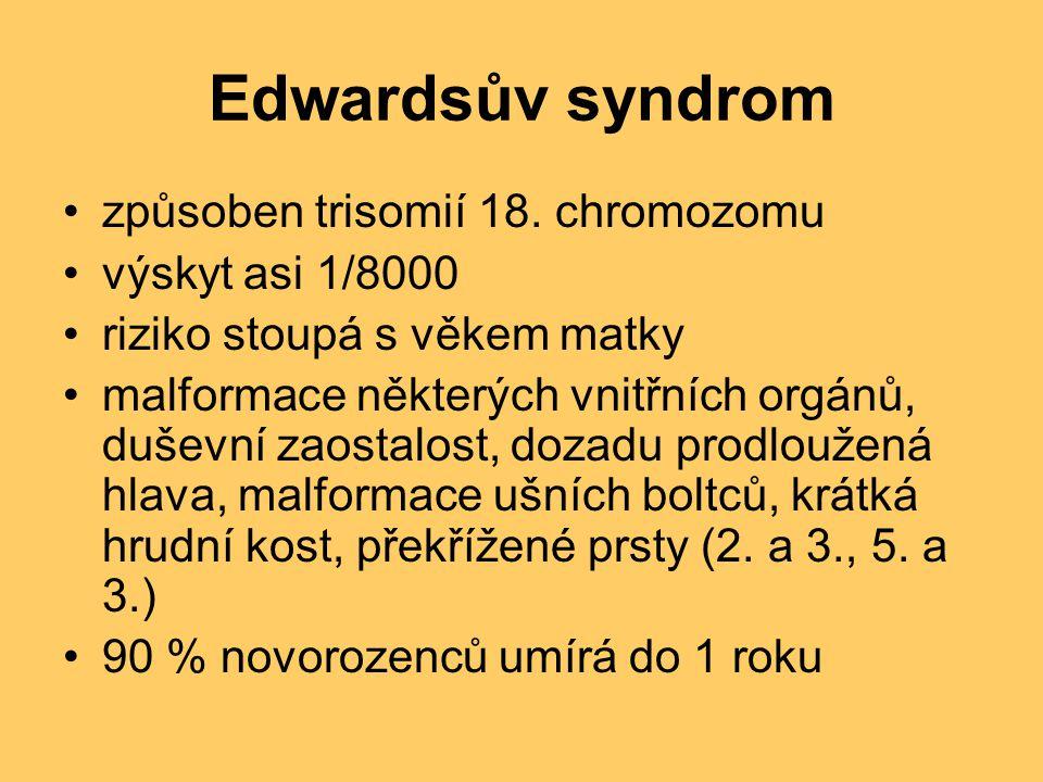 Edwardsův syndrom způsoben trisomií 18. chromozomu výskyt asi 1/8000