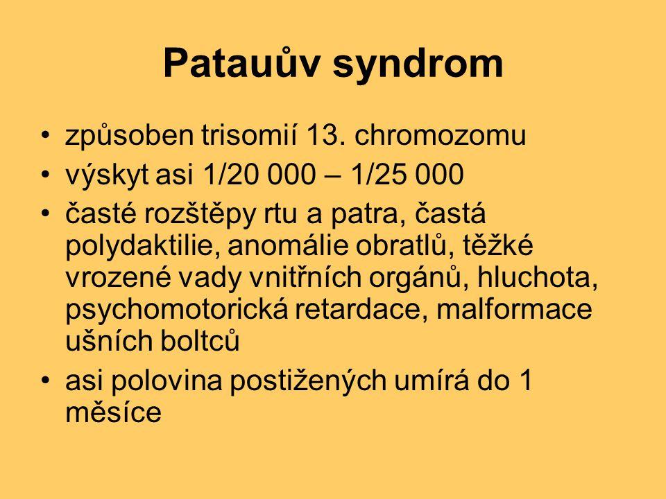 Patauův syndrom způsoben trisomií 13. chromozomu
