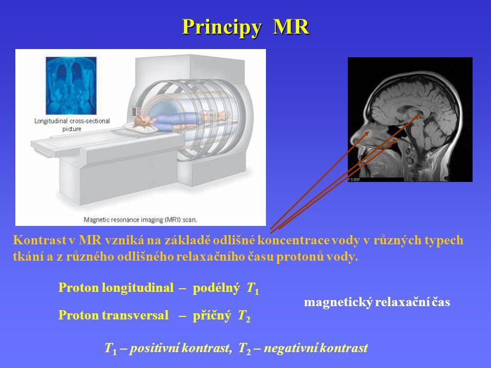 Principy MR Kontrast v MR vzniká na základě odlišné koncentrace vody v různých typech tkání a z různého odlišného relaxačního času protonů vody.
