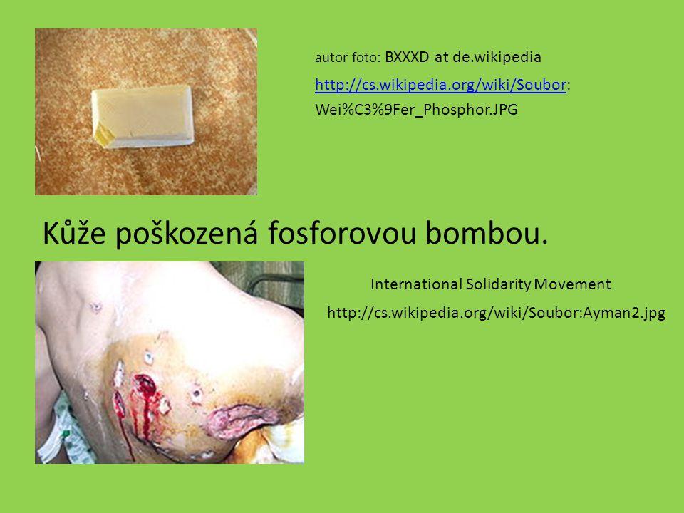 Kůže poškozená fosforovou bombou.