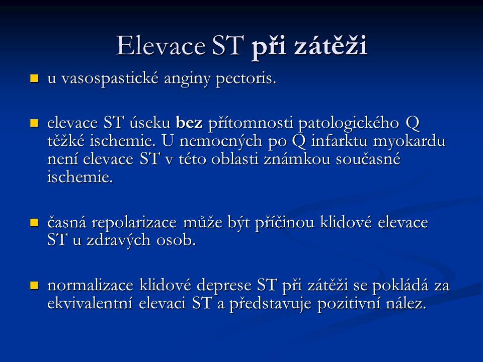 Elevace ST při zátěži u vasospastické anginy pectoris.