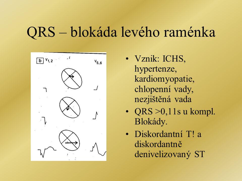 QRS – blokáda levého raménka