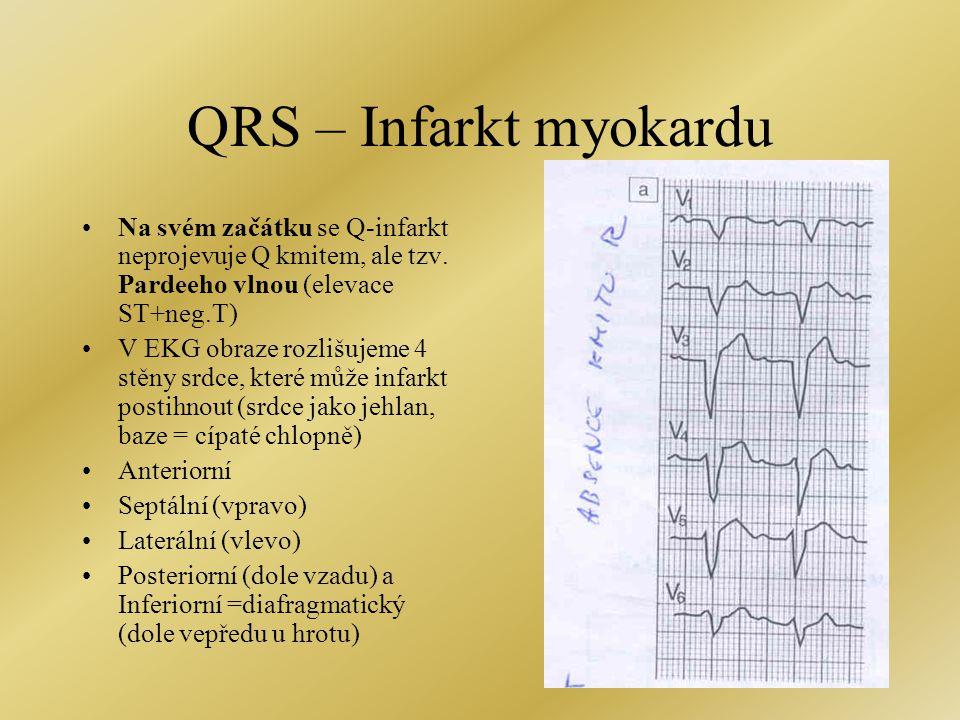 QRS – Infarkt myokardu Na svém začátku se Q-infarkt neprojevuje Q kmitem, ale tzv. Pardeeho vlnou (elevace ST+neg.T)