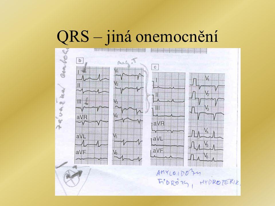 QRS – jiná onemocnění