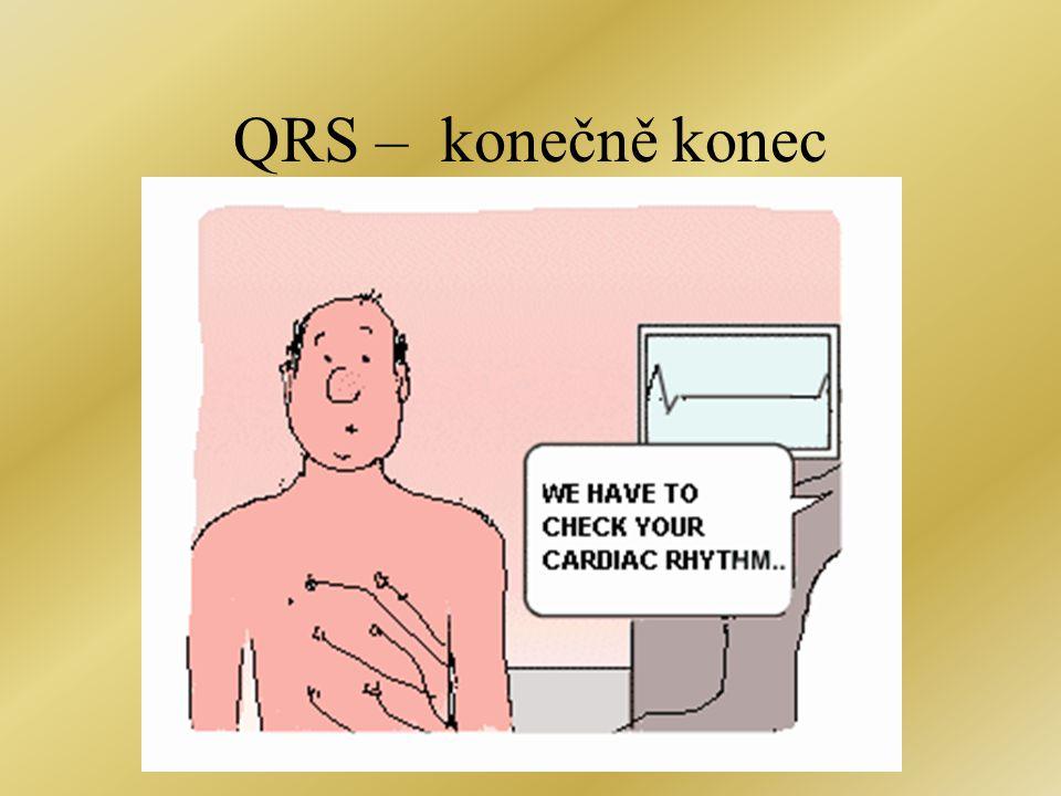 QRS – konečně konec
