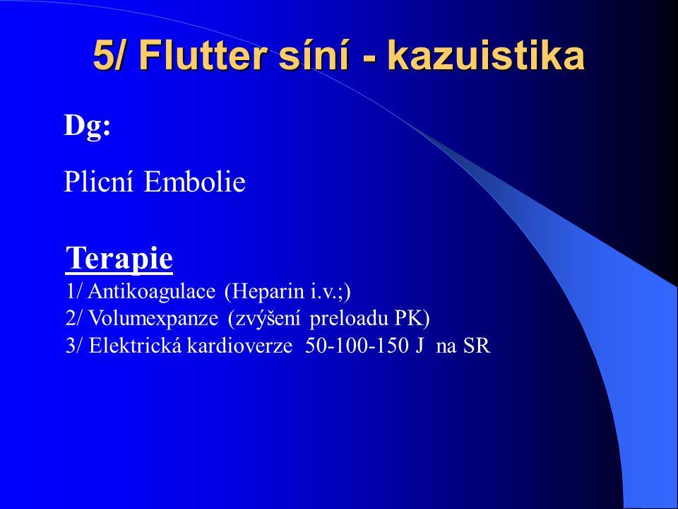 5/ Flutter síní - kazuistika