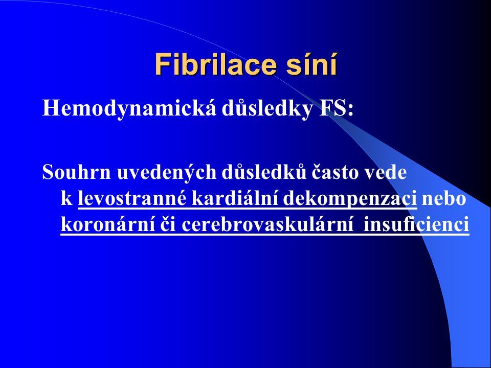 Fibrilace síní Hemodynamická důsledky FS: