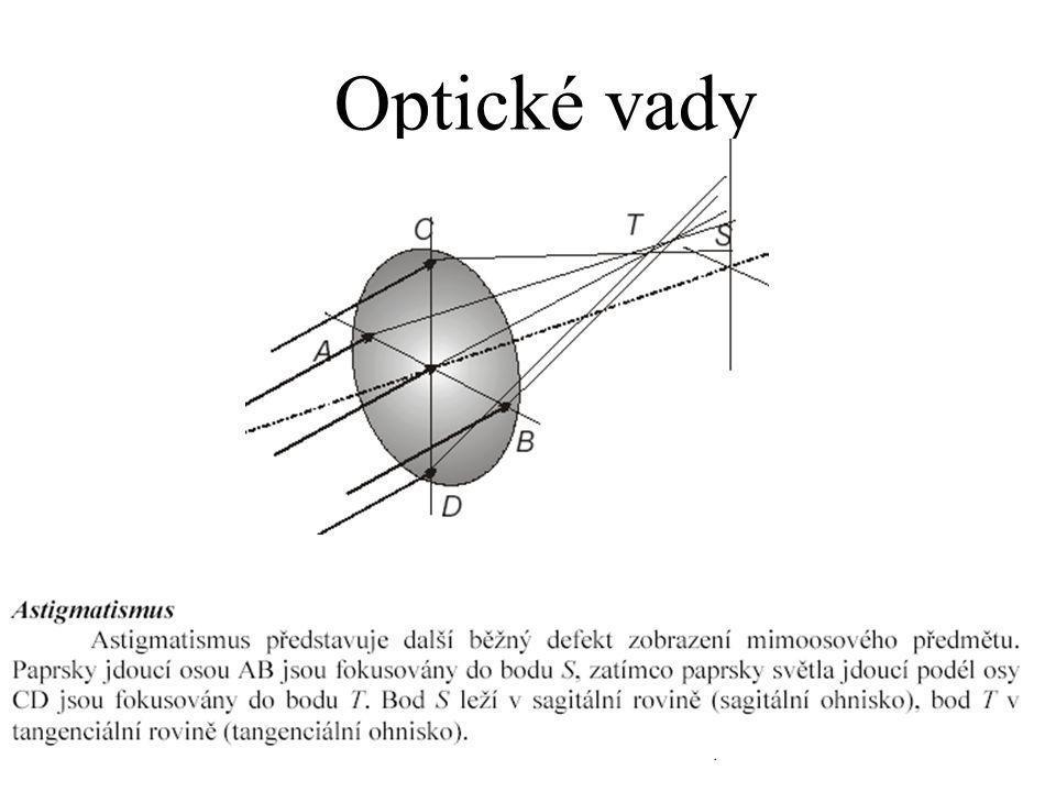 Optické vady